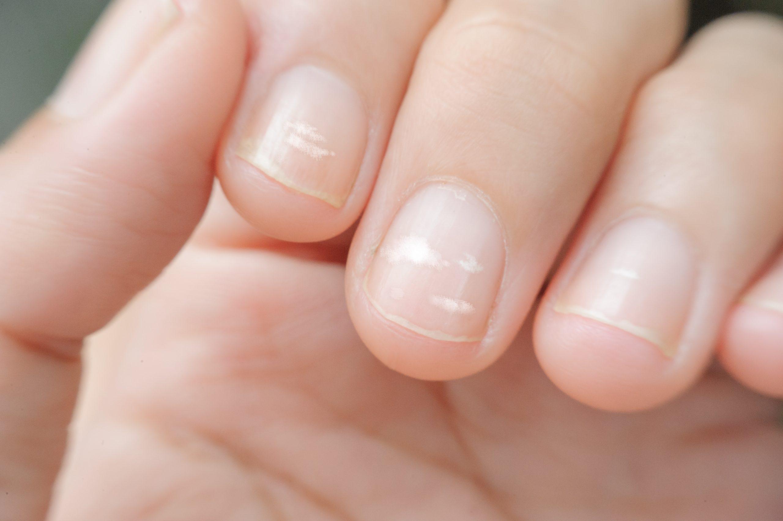 Белые полоски на ногтях у ребенка: безобидный симптом или признак болезни