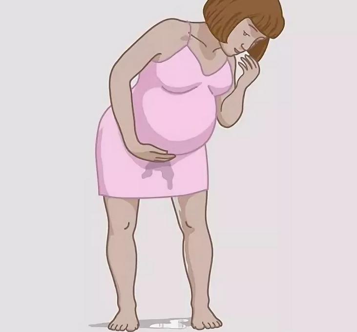 Когда и как отходят воды: все, что важно знать беременным женщинам