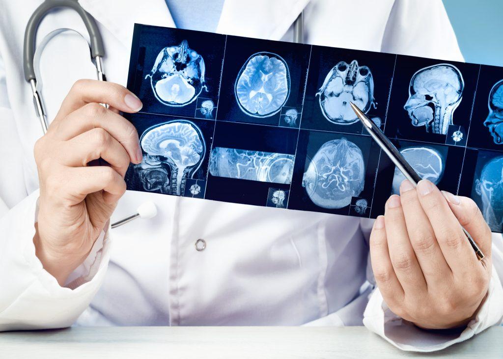 МРТ при травмах головы