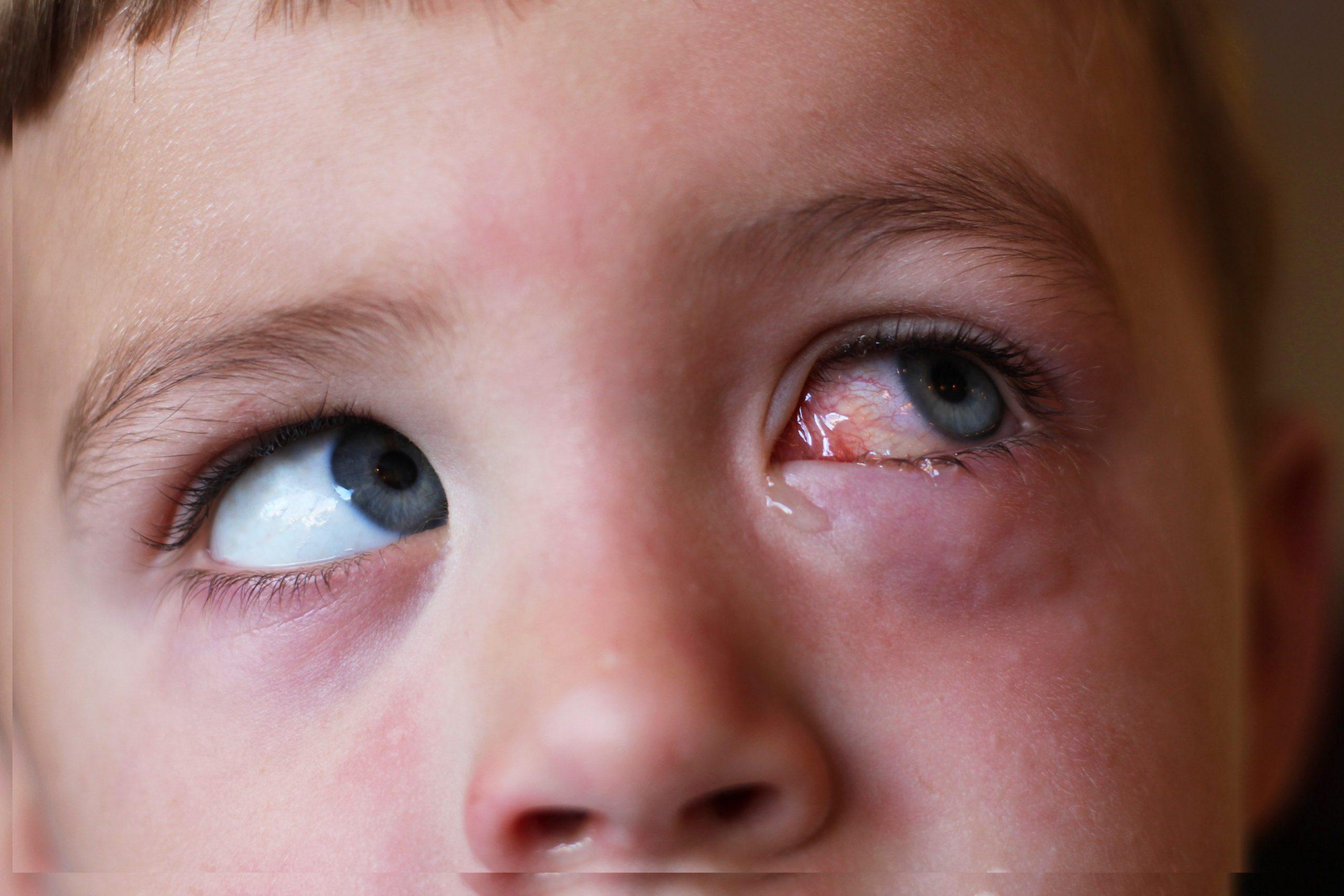 Отек глаза у ребенка: как найти причину и вылечить